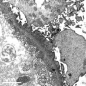 白血病肾损害是怎么回事?